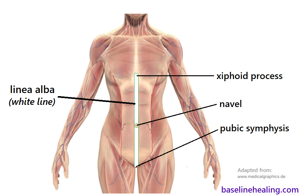 human body seen from the front. The linea alba lying on midline at the front of the abdomen from pelvis to chest. Starting at the pubic symphysis of the pelvis - the bone between the legs, extending to the bottom of the rib cage - the xiphoid process of the sternum. The navel lies on the linea alba and should be able to align with the top and bottom points of the linea alba i.e. the linea alba is fully extendable.