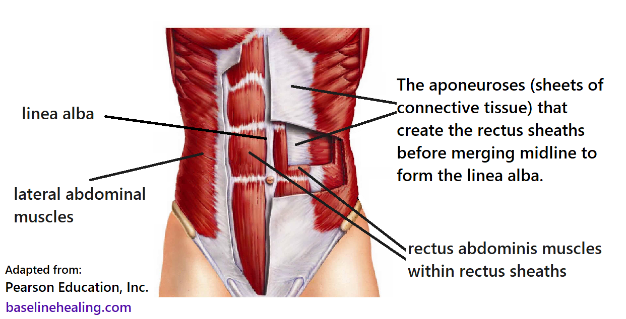 human figure from front showing the lateral abdominal muscles turning into sheets of connective tissue (called aponeuroses) as they come around the front of the abdomen and join the linea alba on midline. Some of the aponeuroses are cut away to show the layers and the way the rectus abdominis muscles sit within a sheath created by the layers of connective tissue.