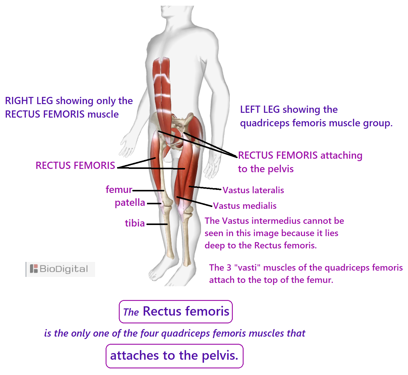 left leg showing the rectus femoris muscle, right leg showing the quadriceps femoris muscles - rectus femoris vastus medialis and vastus lateralis can be seen. The vastus intermedius lies deep to the rectus femoris. The rectus femoris is the only muscle of the quadriceps group that attaches to the pelvis. The 3 vasti muscles attach to the top of the femur. The distal tendons of the four muscles merge to form the common tendon of the quadriceps - to kneecap - to tibia.